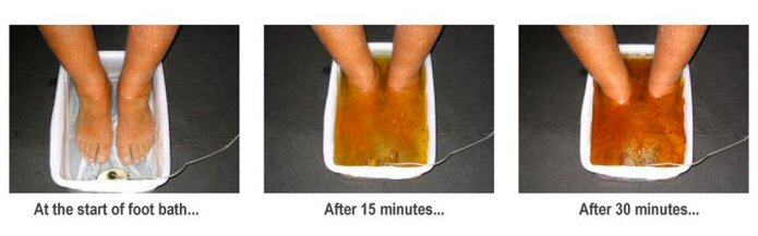 Image result for ionic foot bath description
