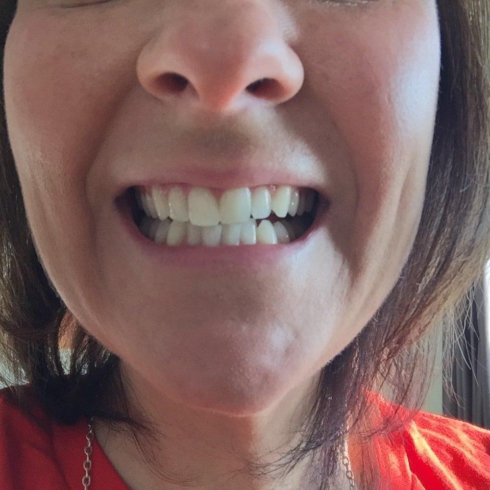 Wedding White Teeth: Get White Wedding Teeth In 5 Days! With Lumist