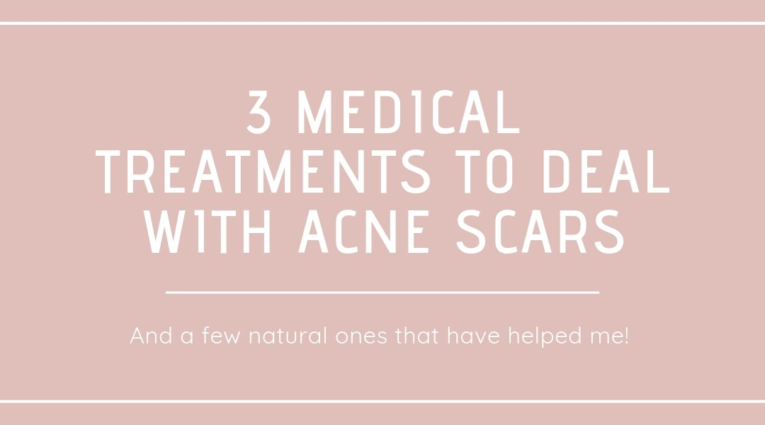 3 Medical Treatments to Deal with Acne Scars..