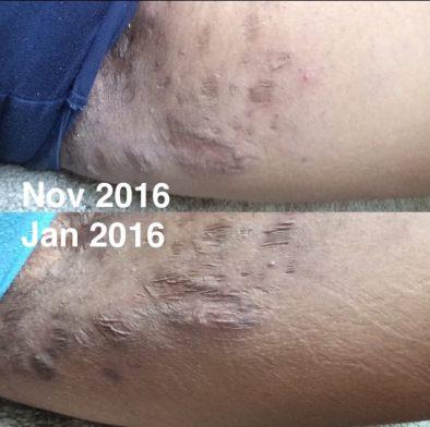 scars from hidradenitis suppurativa