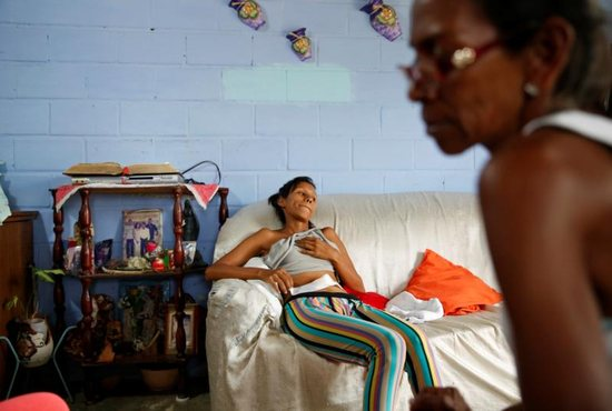 In this 2016 file photo, a woman in San Francisco de Yare, Venezuela, rests on a couch in her home while she recovers from a sterilization surgery. The Catholic Church teaches that sterilization is morally unacceptable, but a hysterectomy could be morally acceptable if the uterus could not sustain a pregnancy, said the Congregation for the Doctrine of the Faith.