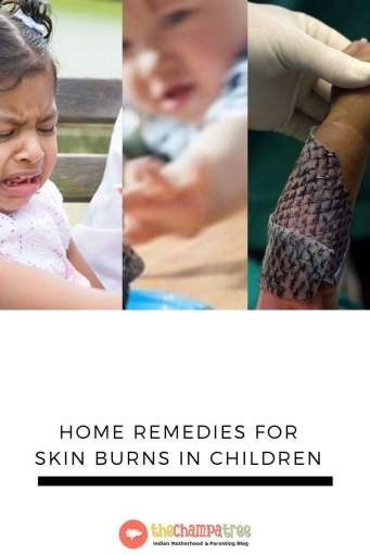 Home Remedies for burns - Three kids with skin burns