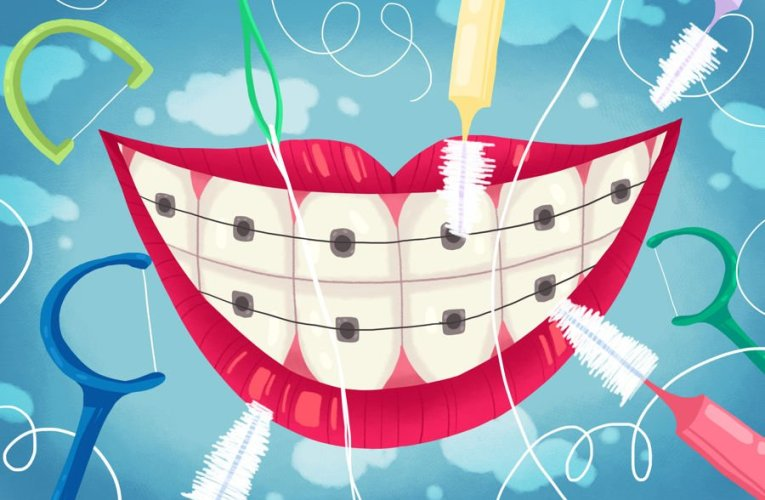 How To Take Care Of Children's Teeth With Braces