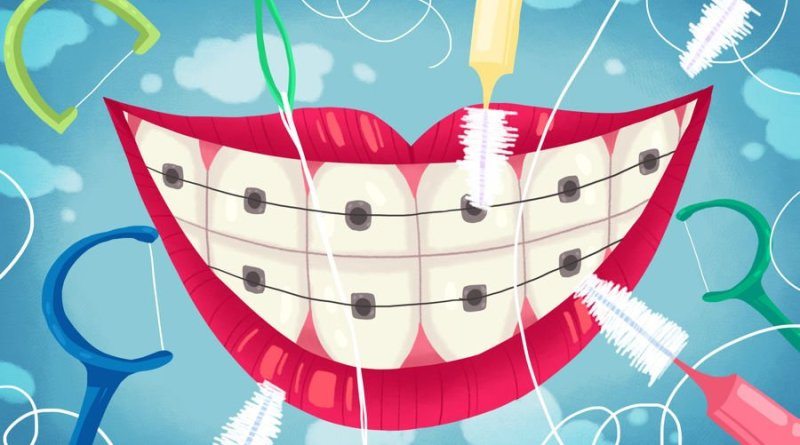 How To Take Care Of Children's Teeth With Braces 01