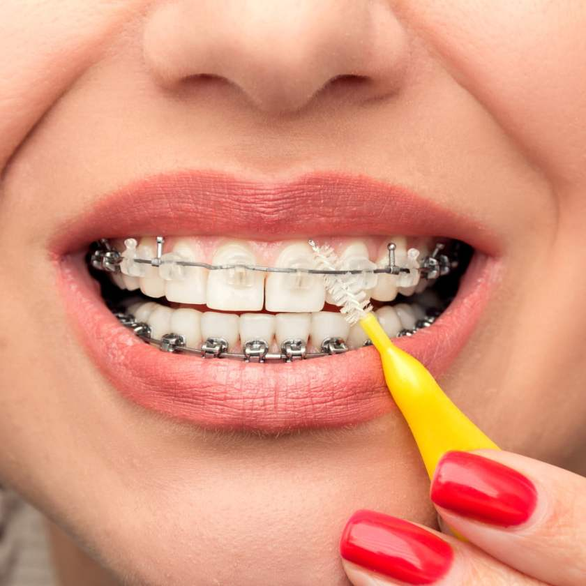 Flossing when you have dental braces