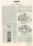 prozhektor-illich-brain-215x300