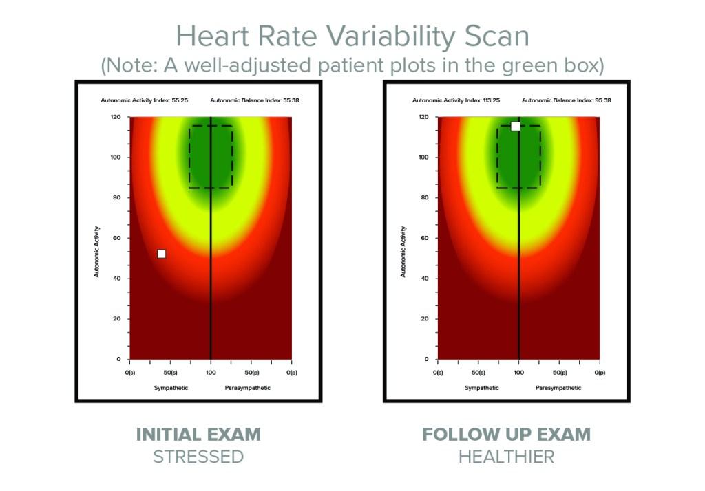hr_variability