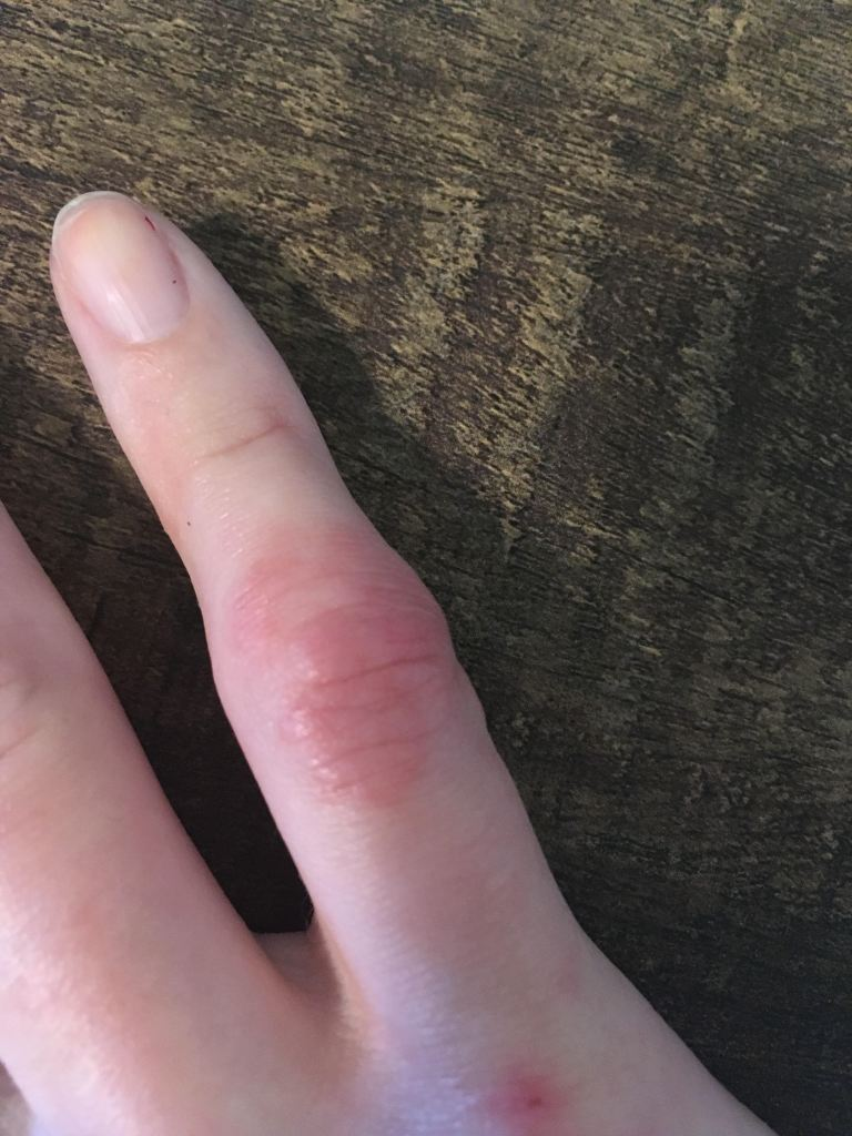 Puffy and swollen pinky finger