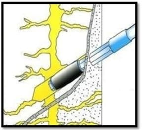 Schematic Presentation of Injection Grouting