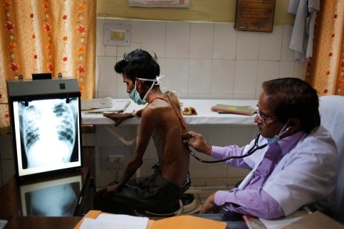 Madhu Pai: India's ambitious new plan to conquer TB needs cash and commitment