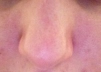 My nose looks the same...