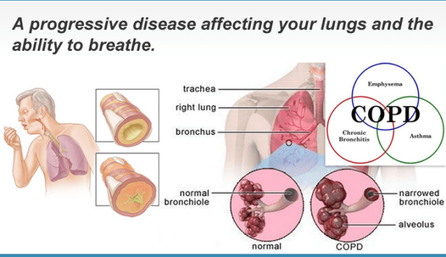 COPD is a very serious respiratory disease.