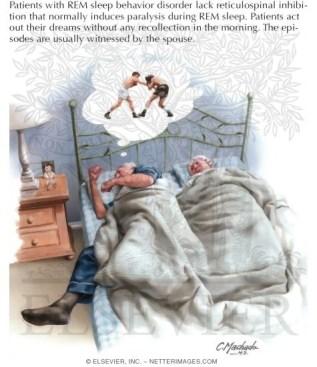 rem sleep disorder behavior.jpg