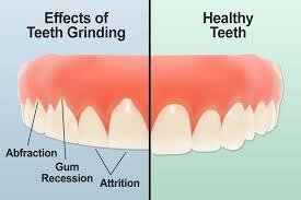 teeth grinding.jpg