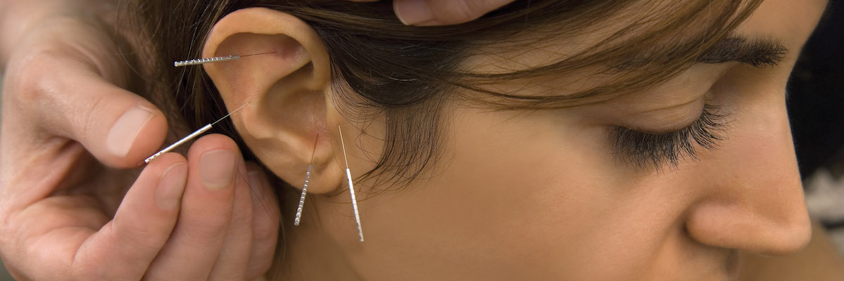 Ear Acupuncture CPDG course