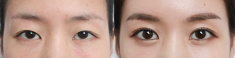 eye-surgery-2