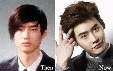 lee-jong-suk-plastic-surgery-before-and-after-photos
