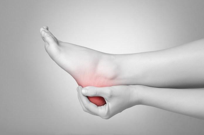 Plantar Fasciitis or Heel Pain