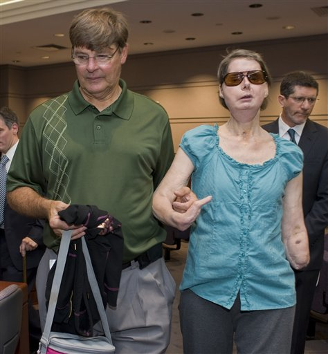 chimp attack victim let me sue state for 150m maryland daily record