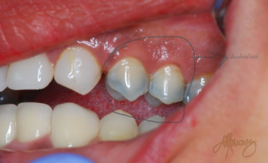 discoloured teeth due to an old amalgam filling