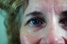 eyes-HbA1c