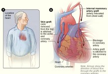 coronary artery bypass grafting surgery