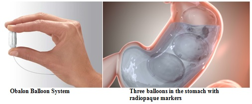 Obalon Balloon System For Weight Loss Fda Approves