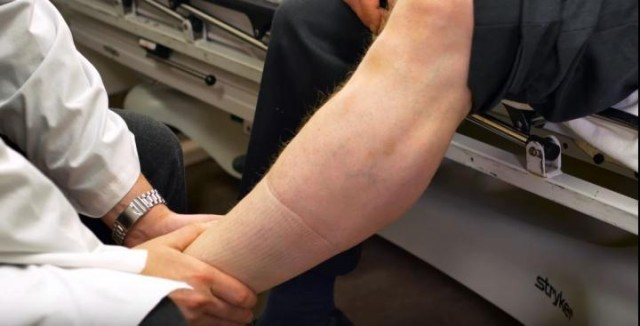 New Blood Thinner Better than Aspirin for Blood Clots