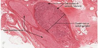 Dorsal Root Ganglion - Diabetic Neuropathy