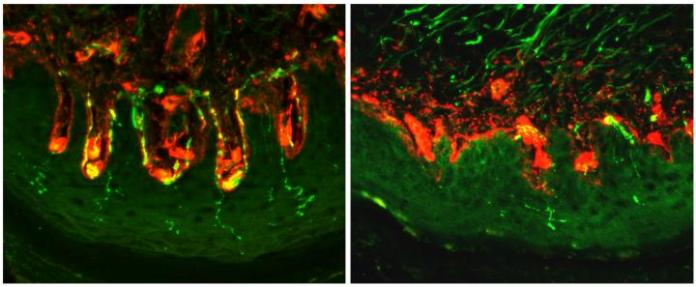 Source of Diabetic Pain Found