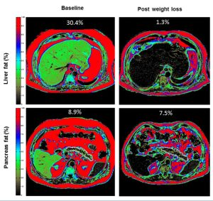 MRI Images of Liver and Pancreas Fat and Diabetes