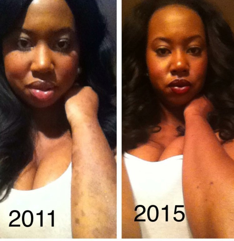 Alisha Bridges showing the difference in her psoriasis from 2011 to 2015