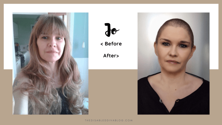 Jo Moss shares how her chronic illness forced her to make a drastic decision regarding her hair.