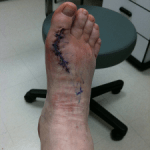 Random image: heal-fast-from-foot-surgery-rodrigue-beaubois-photo