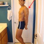 Random image: how-to-treat-a-bruised-triceps-matt-harrison-photo