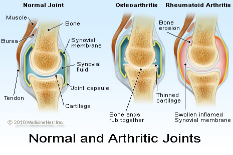 Normal & arthritic joints