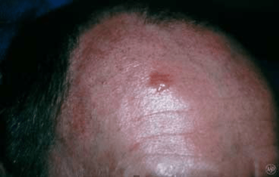 Photo of basal cell carcinoma (575 x 366)