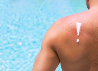 Man with sunburn by swimming pool 1500 x 1000
