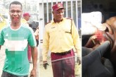 LASTMA, police personnel knock out driver's teeth in brutal attack