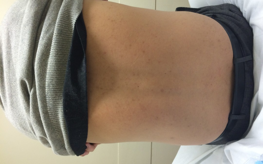Difficult Lumbar Puncture? Ultrasound to the rescue! - The EM Pulse