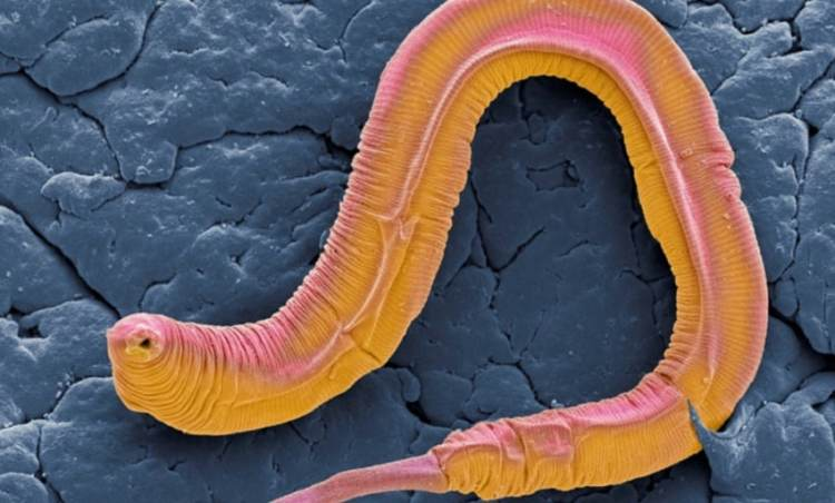 Worms Programmed To Die Before Turning Old