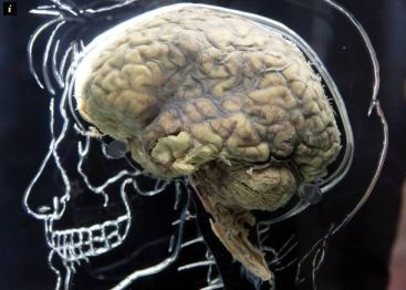 brainskull