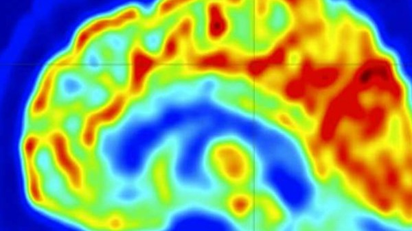 Imaging approach to stop epilepsy seizures