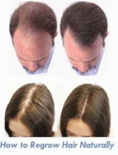 Chinese-Herbs-Hair-Loss-Review