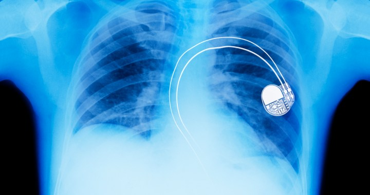 X-ray of cardiac pacemaker