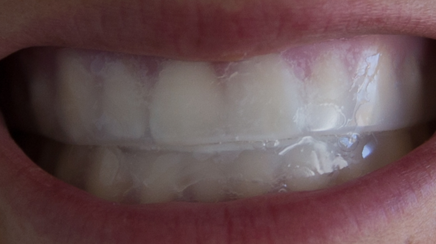 Home teeth bleaching.