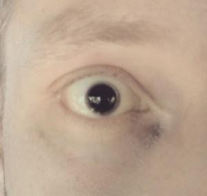 Squash Ball Eye 2