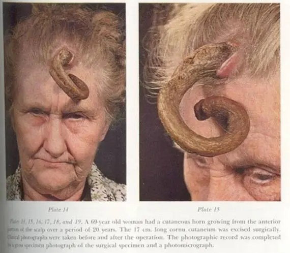 Human Unicorns - People with horns growing on their head