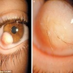 Man grows hairs in eye