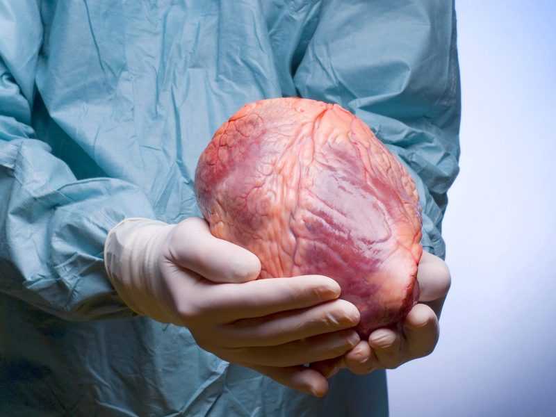 strange transplant stories
